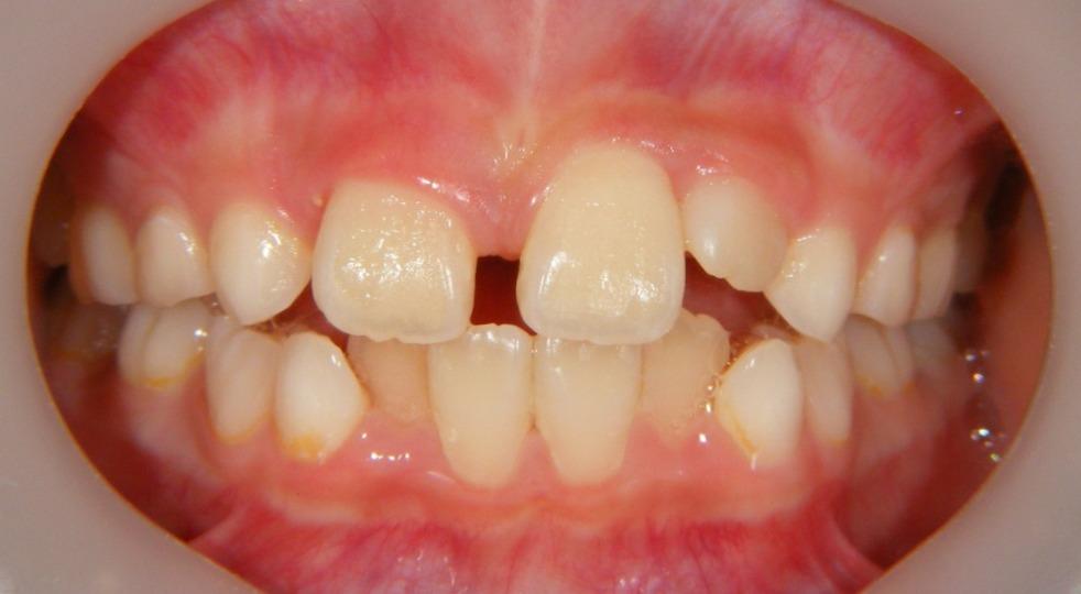 タグ : 永久歯